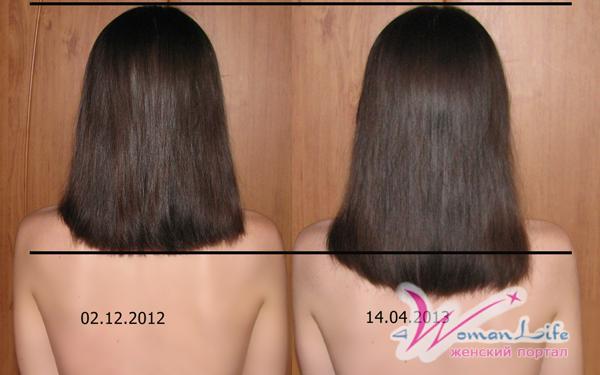 Средства быстро отрастить волосы в домашних условиях 499