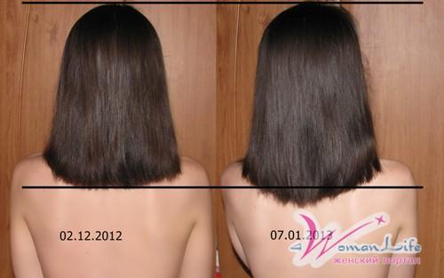 Сильное выпадение волос у подростков-девочек